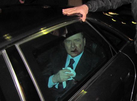 ++ Berlusconi: Tartaglia è libero, 'non pericoloso' ++