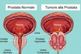 Prostata tumore